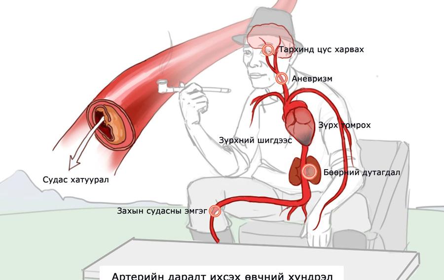 D84a6d 2 hypertension complication h450