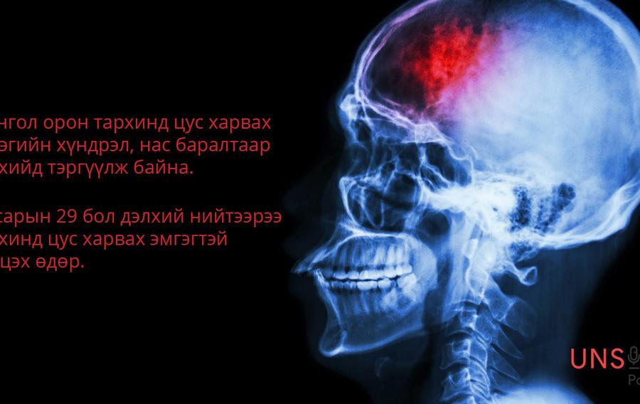 9e597a  1301 unsick stroke h450