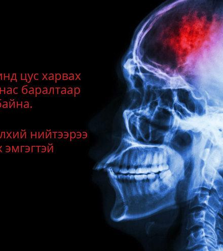 9e597a  1301 unsick stroke x220