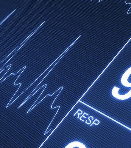 13d09a heartbeat x220