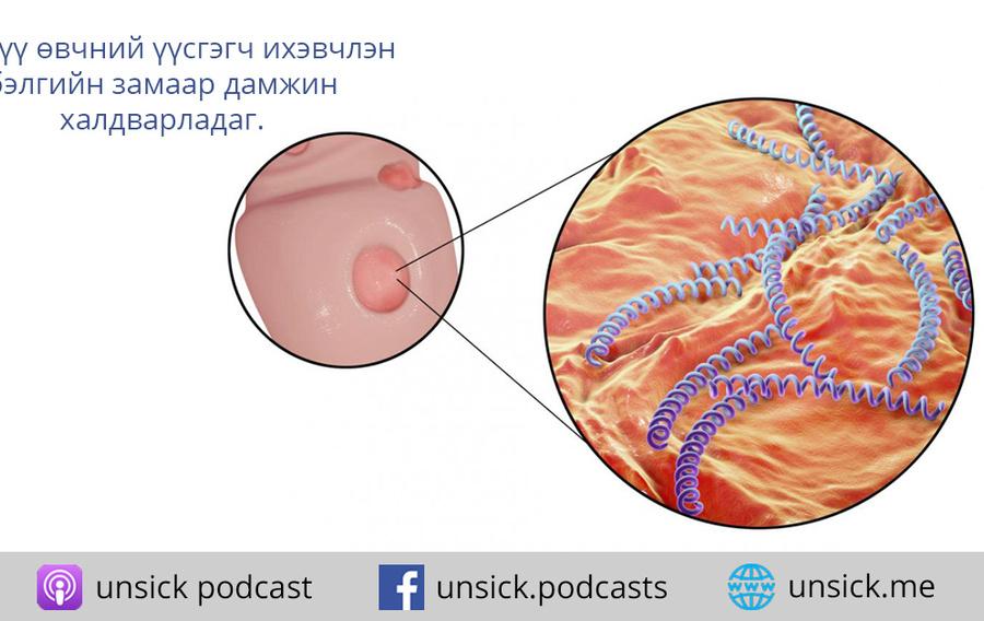 68d67e  70 siphilis 1  h450