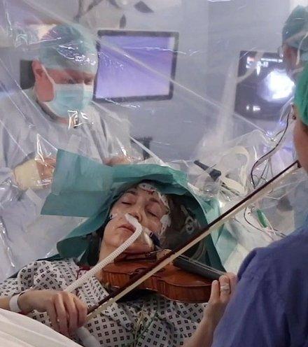 Dbd086 brain surgery violin x220